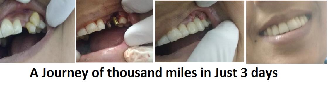 Implant photos